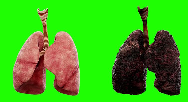 Легкие здорового и курильщика