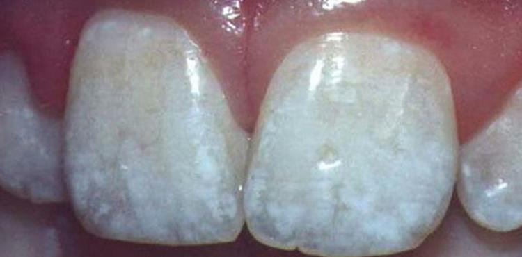 Зубы после фтора