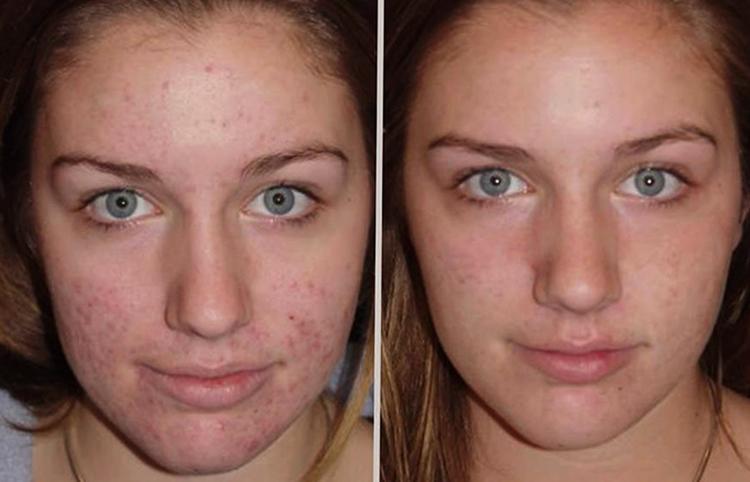 Лицо до и после мыла