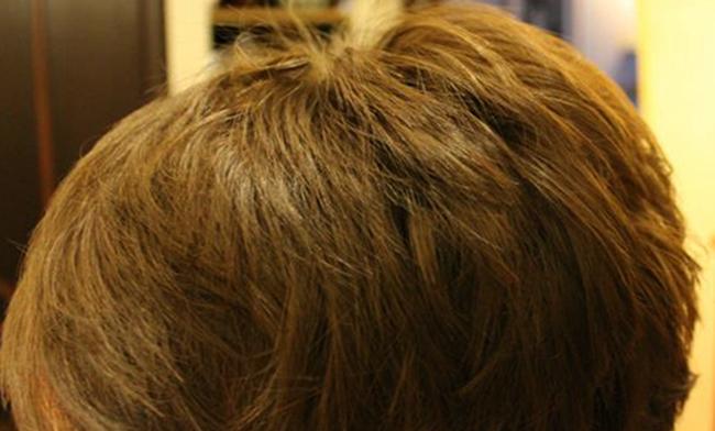 Волосы после дегтярного мыла