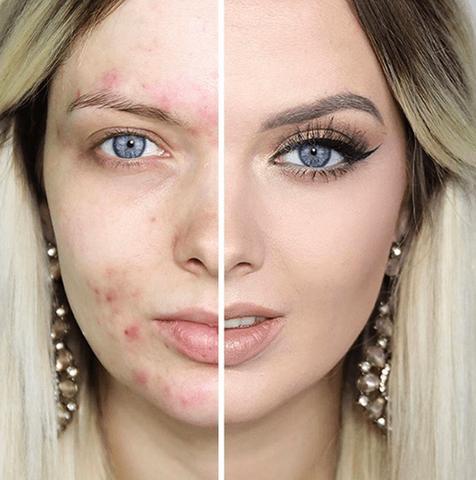 До и после использования серного мыла
