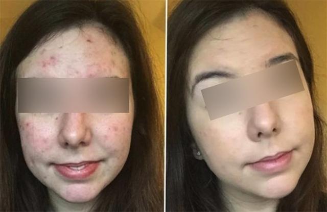 Лицо до и после березового дегтя