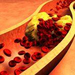 Холестерин: вредные качества и польза