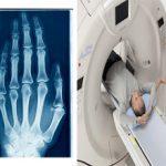 Какая процедура вреднее рентген или КТ?