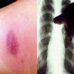 Какая процедура вреднее диаскинтест или рентген