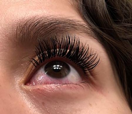 Красные глаза после наращивания