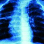 Что вреднее для здоровья рентген или флюорография